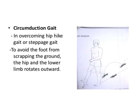 An approach to limping child