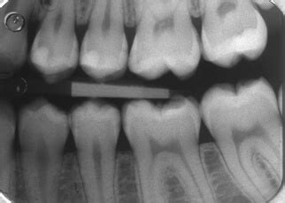 Are Dental X-Rays Safe? See These Diagrams – Teeth FAQ Blog