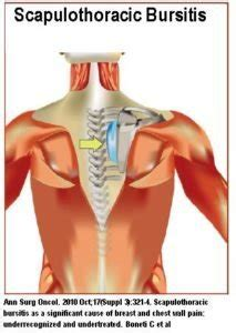 What is scapulothoracic bursitis (snapping scapula